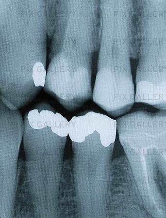 Röntgenbild på lagade tänder