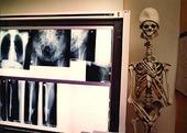 Röntgenbilder